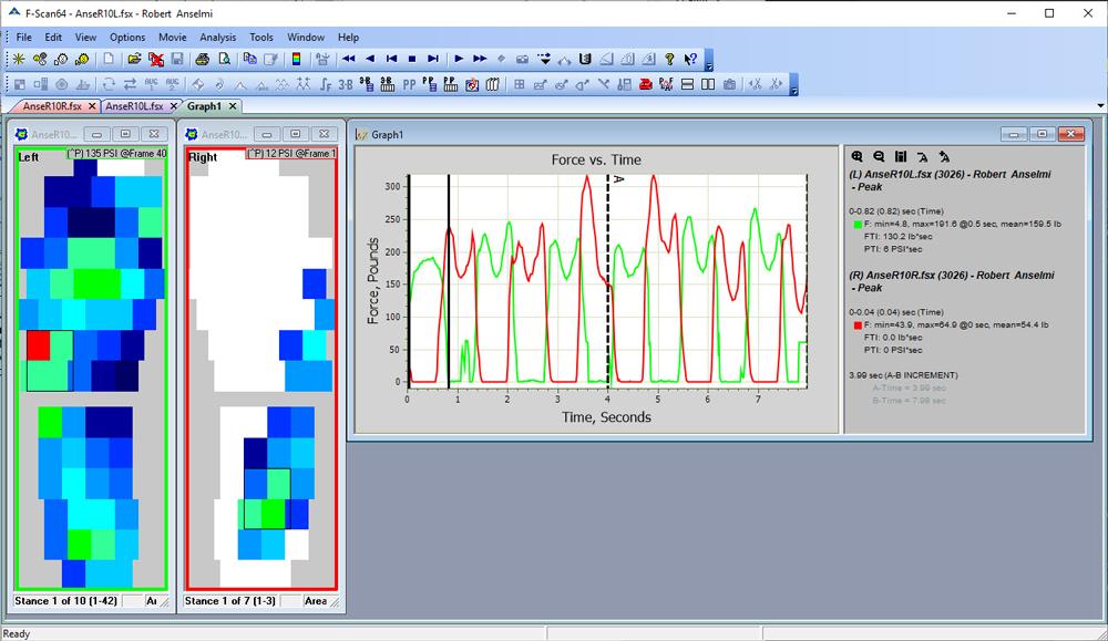 F-Scan64 logiciel